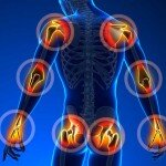 Eklem Sağlığı İçin Faydalı 3 Besin Takviyesi